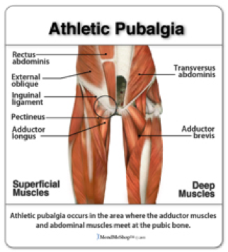 Sport's Hernia - Athletic Pubalgia