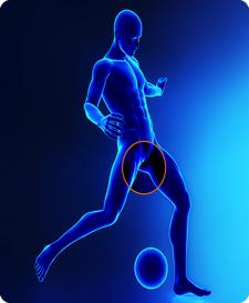 sports-hernia-img-3